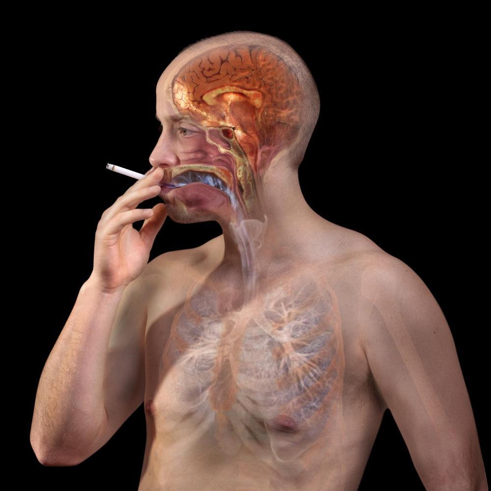 Hút thuốc tăng nguy cơ đột quỵ não