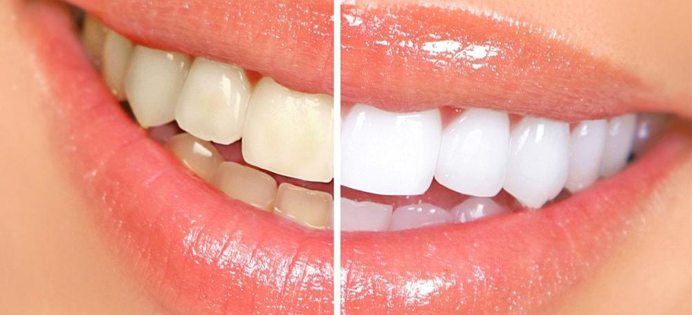 Tránh để hàm răng bị xỉn màu