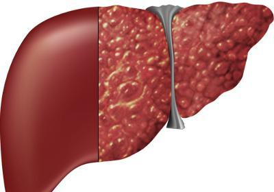 Tìm hiểu về bệnh lý gan và cách điều trị