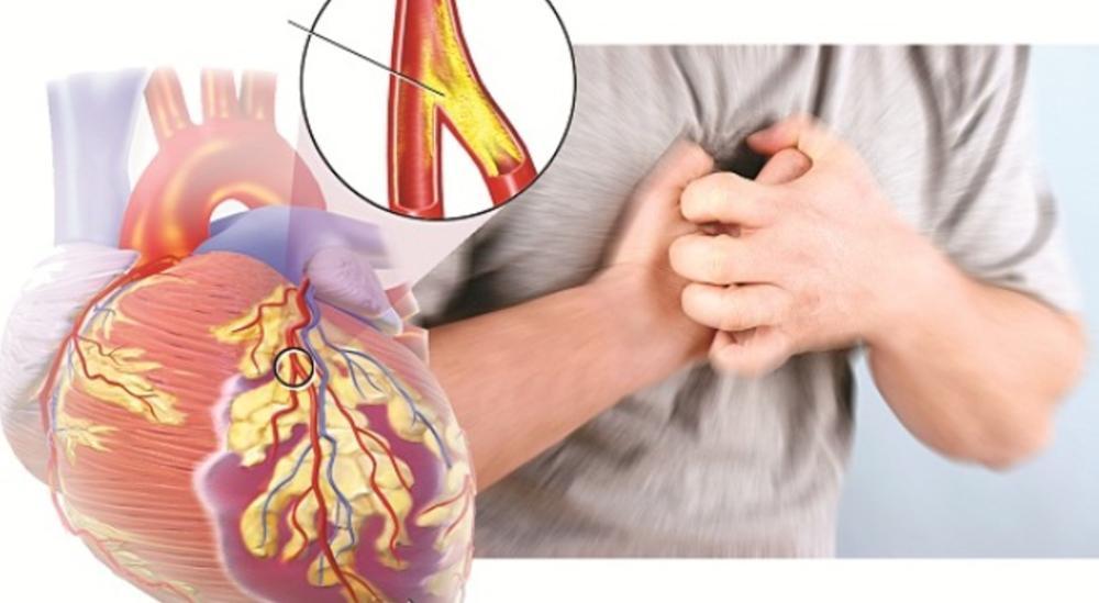 Tìm hiểu bệnh tim mạch.