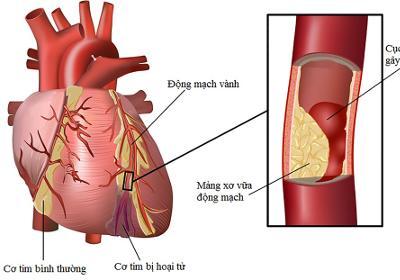 Tìm hiểu về bệnh tim mạch