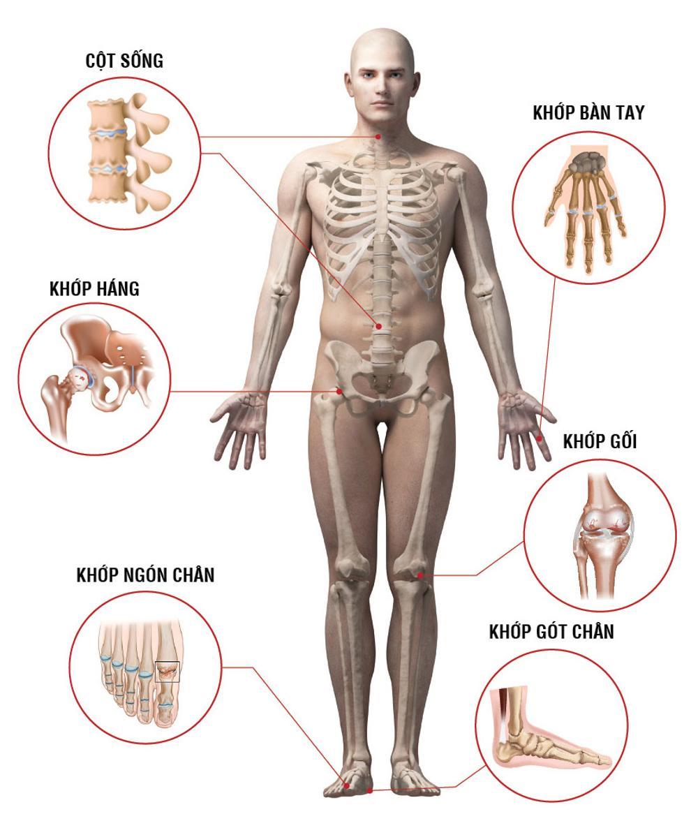 Bệnh xương khớp ở người trẻ